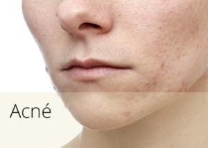 diapos_acne