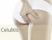 diapos_celulitis