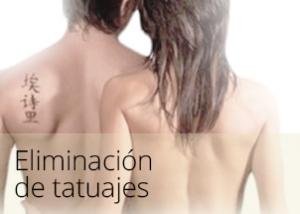 diapos_tatuajes