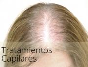 diapos_alopecia2