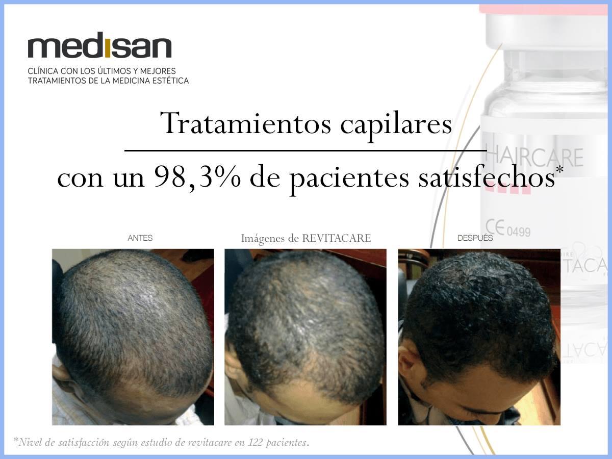 tratamientos capilares alopecia mallorca clinica