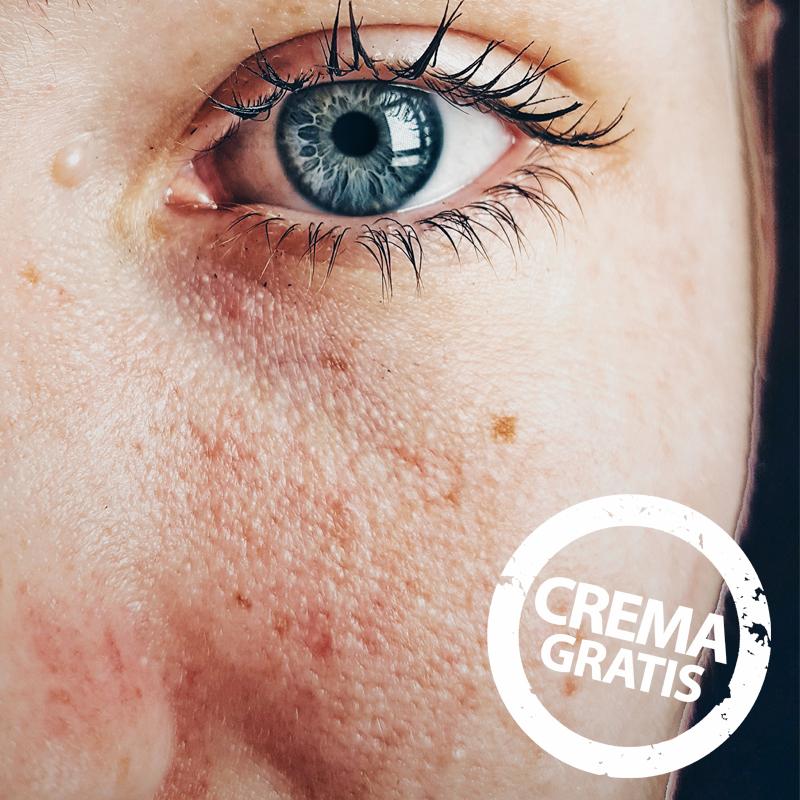 tratamientos faciales medisan inca