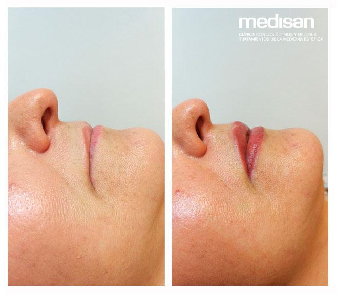micropigmentación-de-labios-mallorca