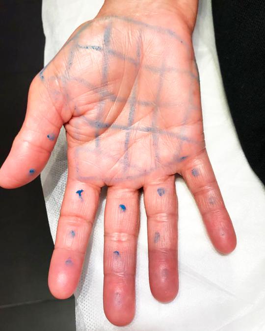 tratamientos excesiva sudoración en manos